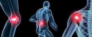 Espondiloartritis y hla b27