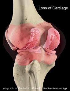 artrosis vs artritis